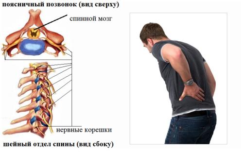 Боль в области позвонка возникает из-за воспаления или ущемления нервного корешка