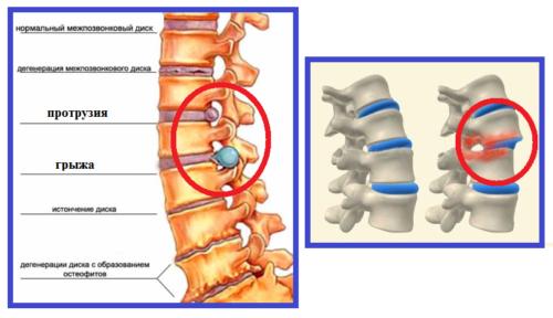 Степени остеохондроза и соскальзывание (спондилолистез) позвонка
