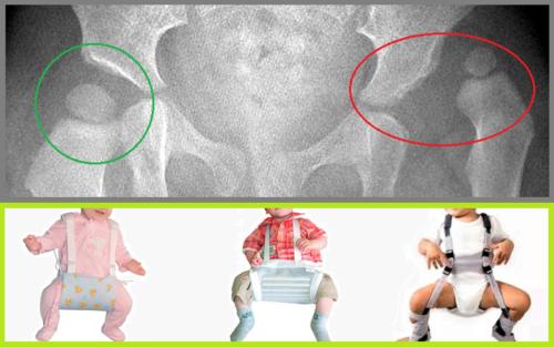 Одно из ортопедических изделий для исправления дисплазии тазобедренных суставов — шина (стремена) Фрейка