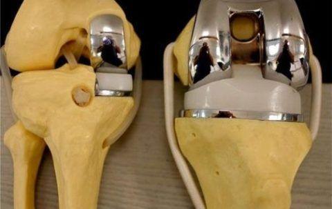 Замена медиального хряща и полное эндопротезирование коленного сочленения