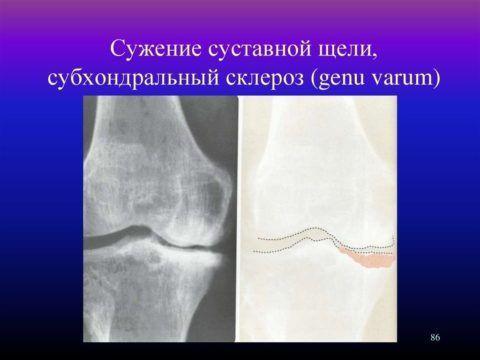 Замыкательная пластинка колена