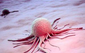 Рак при гипертонии