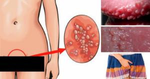 Причины появления волдырей на половых губах у женщин. На какие симптомы следует обратить внимание и обратиться за диагностикой, чтобы своевременно начать выбрать метод лечения белых пузырьков на половых органах.